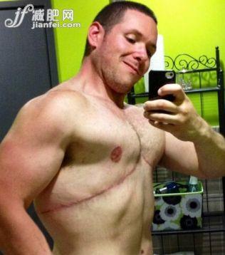 惊呆了!美国胖男两年减掉92公斤